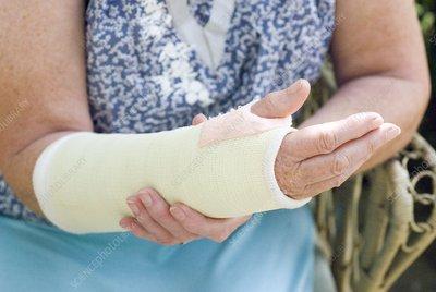 Senior lady with a broken arm