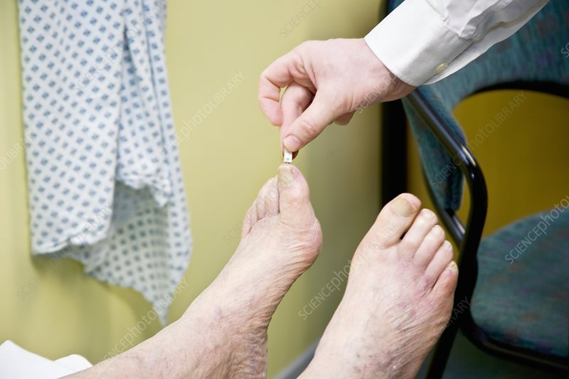 Toe sensitivity test