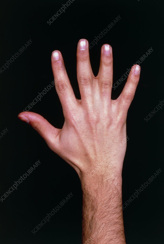 Photo showing congenital fusion of 2 fingers