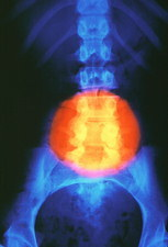 False-colour X-ray of meningomyelocele