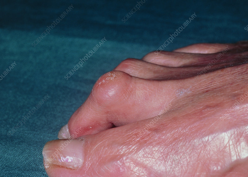 Hammer toe: deformity of second toe with corns