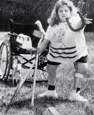 Young woman with spina bifida throws a horseshoe