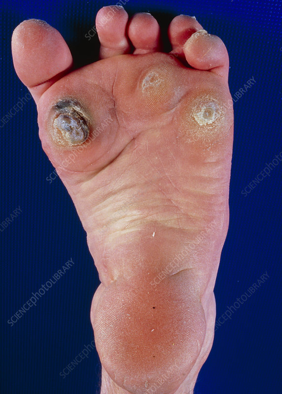 Patient affected by claw-toes