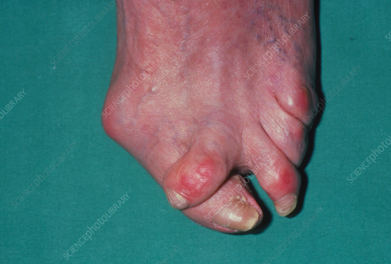 Hallux valgus: bent and twisted toes due to bunion