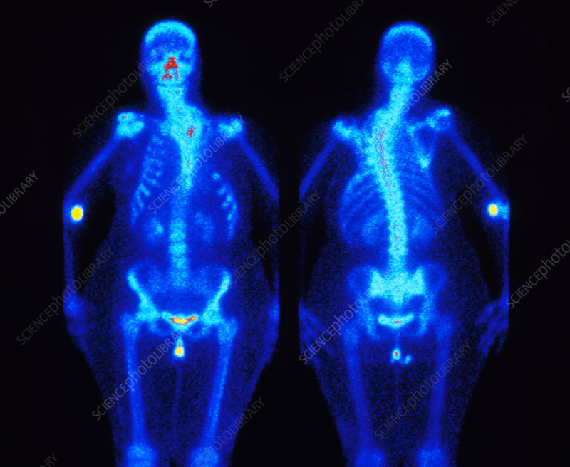 SPECT scan showing spinal scoliosis (curvature)