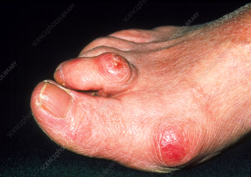 Hammer toe and bunions on elderly woman's foot