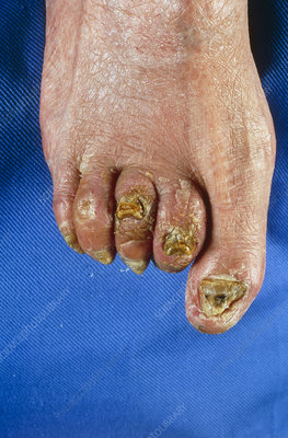 Top view of foot showing severe hammer toes