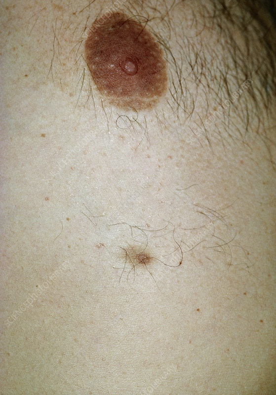 Accessory nipple on a man's breast