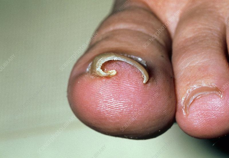 Close-up of an ingrowing toenail