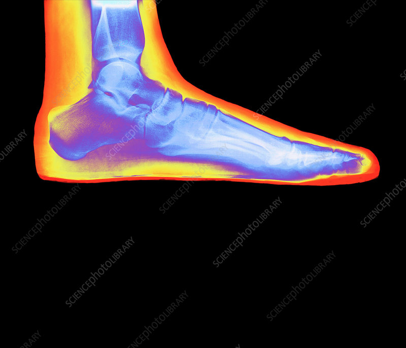 Coloured X-ray of a woman's flat foot