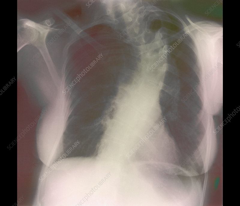 Scoliosis of spine