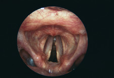 Vocal cord nodule