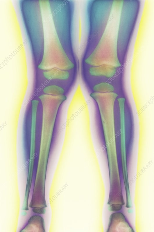 Knock-knee, X-ray