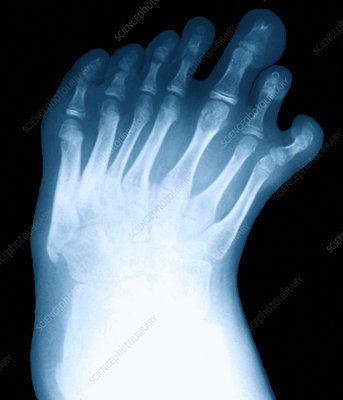 Seven-toed foot, X-ray