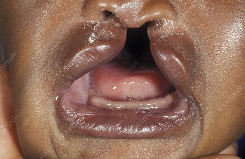 Cleft Palate Stock Image M350 0275 Science Photo Library