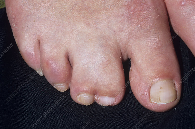 webbed toes - stock image m350/0291 - science photo library, Skeleton