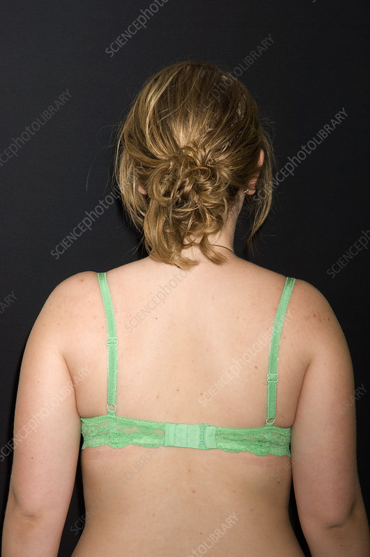 Postural scoliosis after treatment