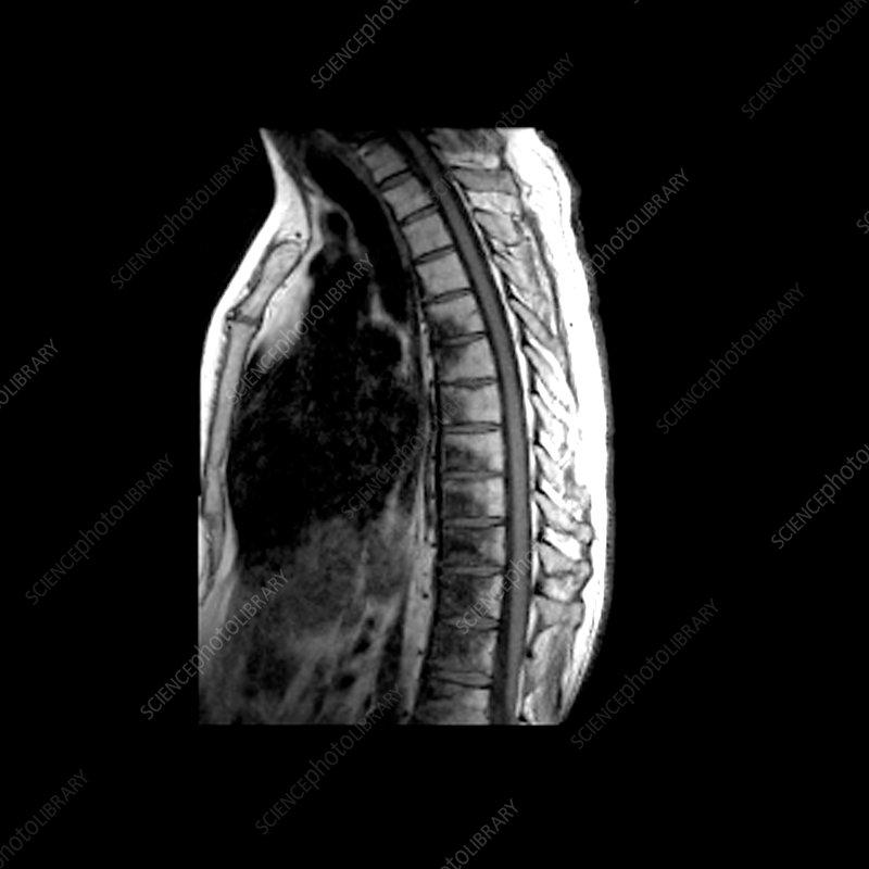 Mri Of Metastatic Disease To Thoracic Spine Stock Image M350
