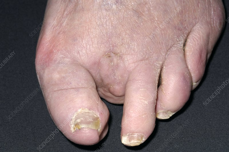 Amputation for ulcerated hammer toe