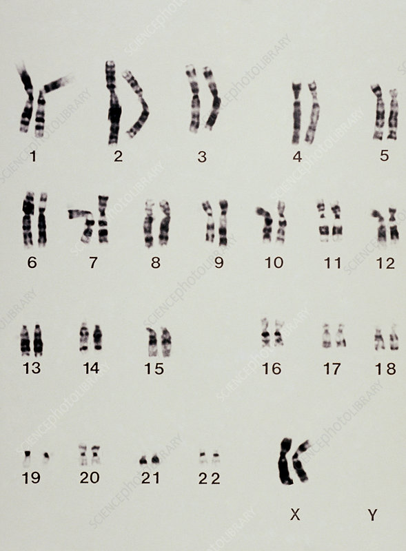 Karyotype showing arrangement of chromosomes