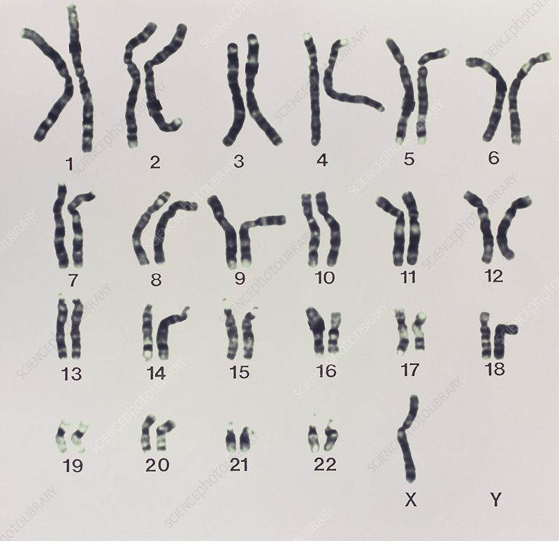 Karyotype of Turner's syndrome