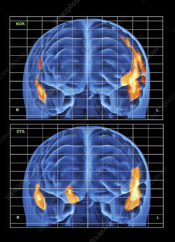 Dyslexic and normal brain during reading