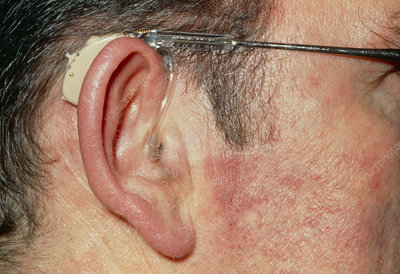 Man Wearing Air Conductor Hearing Aid On Glasses Stock