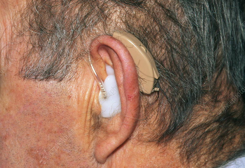 Man's ear fitted with a hearing aid
