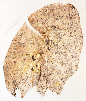 Section of human smoker's lung showing tar