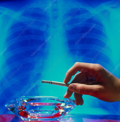 X-ray of healthy/unhealthy lungs & cigarettes