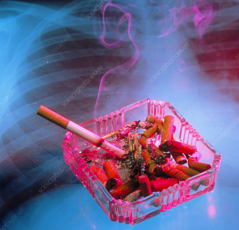 Full ashtray with x-ray of lungs in background