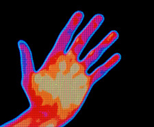 Non-smoker hand thermogram