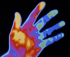 Thermogram of a smoker's hand