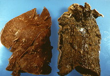 Gross specimen of normal & smoker's lungs