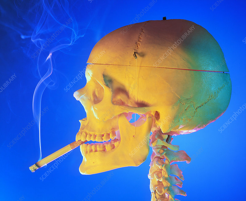 Side view of skull with a cigarette between teeth