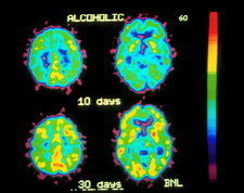 Coloured PET brain scans of alcohol withdrawal