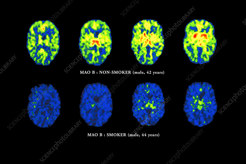Smoking brain scans