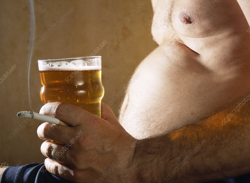 Beer belly - Stock Image M370\/0897 - enlarged - Science Photo Library
