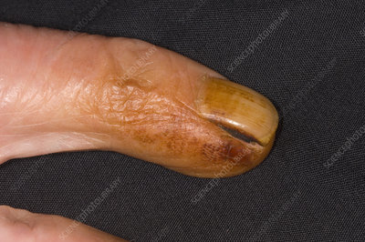 Smoker's finger