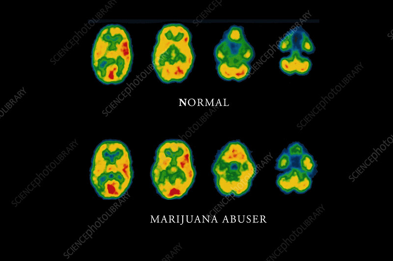 Cannabis brain scans
