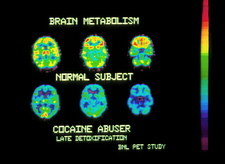 Coloured PET scans of an ex-cocaine user's brain