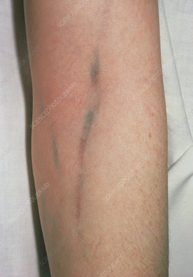Injection tracking marks on arm of heroin addict