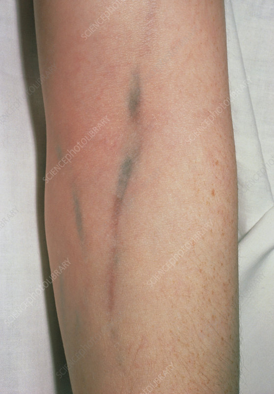 Injection tracking marks on arm of heroin addict - Stock Image