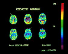 PET scans of brain of a cocaine user