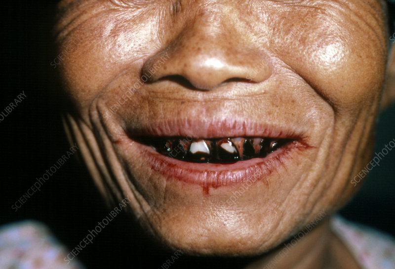 Close-up of Betel-stained teeth of Thai woman