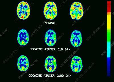 Cocaine use pet brain scans