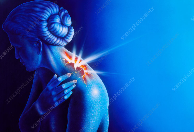 Woman touching her shoulder in pain