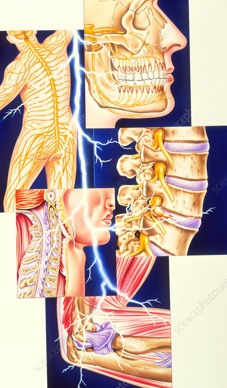 Artwork showing common sites of pain