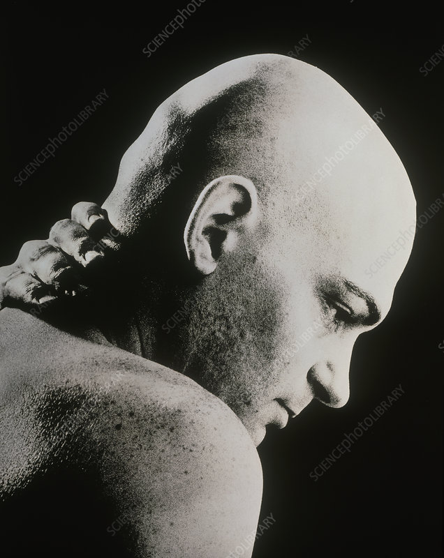 Bald man holding his neck suffering from pain
