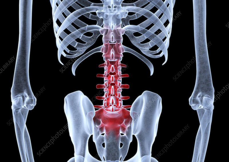 Lower back pain, X-ray artwork
